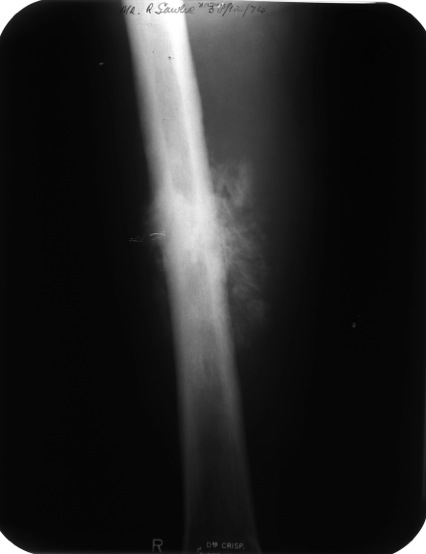 femur with cancer